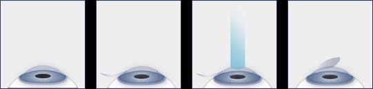Illustration of the LASIK Procedure