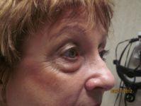 Eye Before Blepharoplasty Surgery